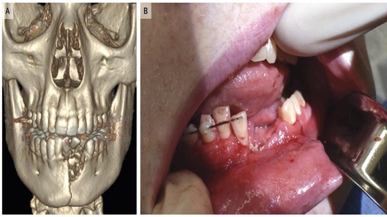 Vape Meledak di Mulut, Gigi Remaja Rompal