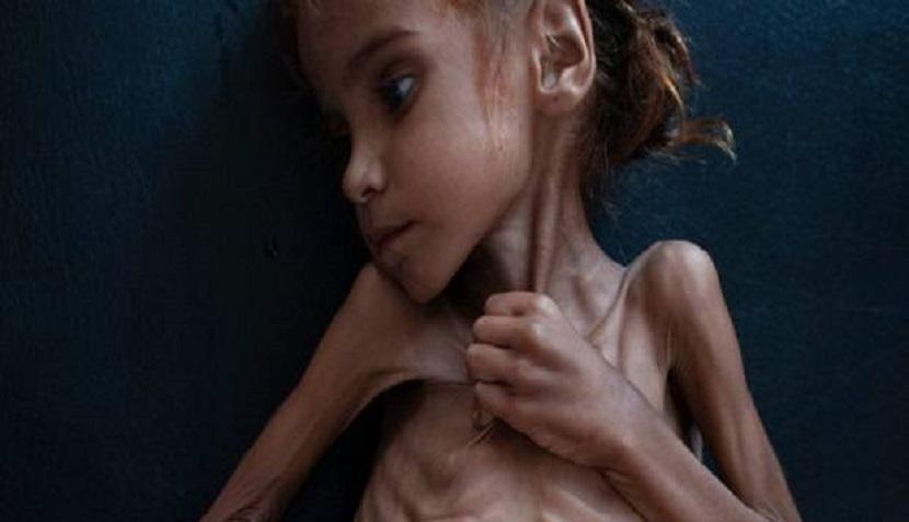 Warga Marah, Facebook Blokir Foto Gadis Kelaparan
